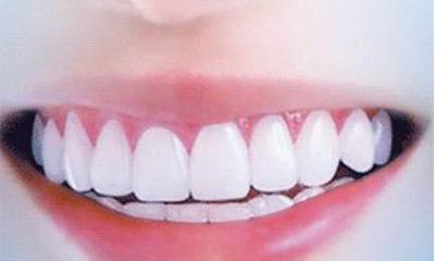 """青春福利 三一员工健康生活 从""""齿""""开始"""